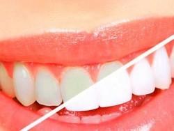 Logo Dental 3D