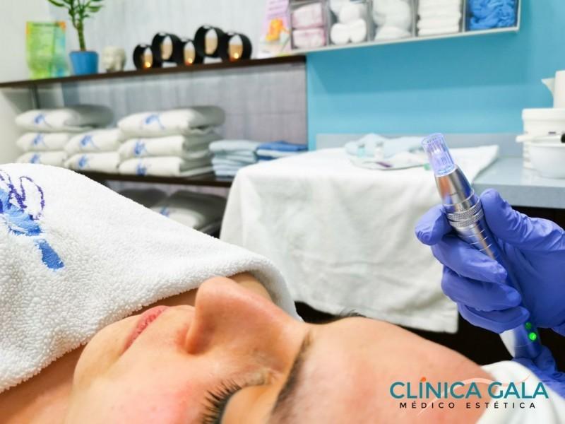 Clínica Médico Estética Gala Leganés
